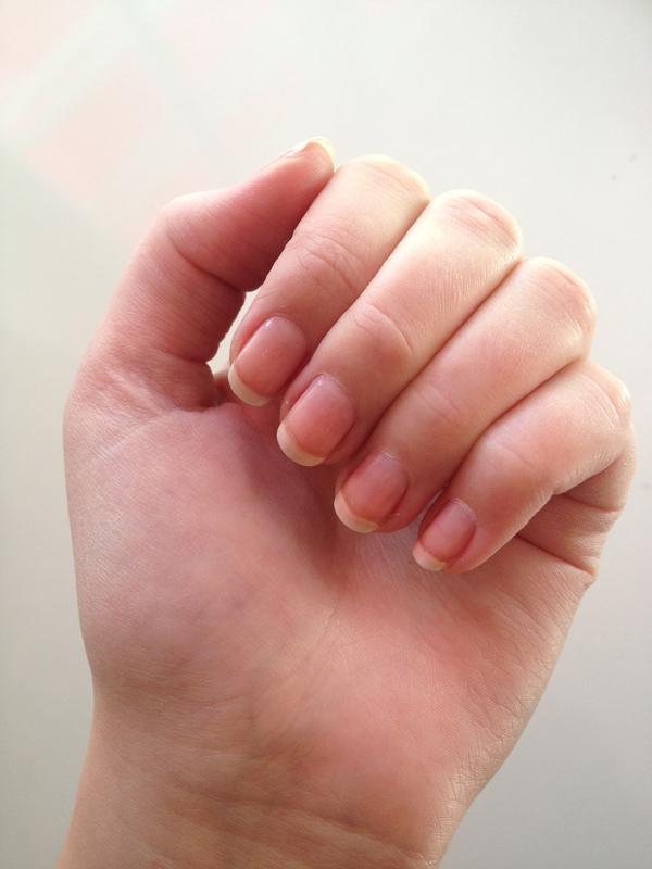 skivade naglar brist