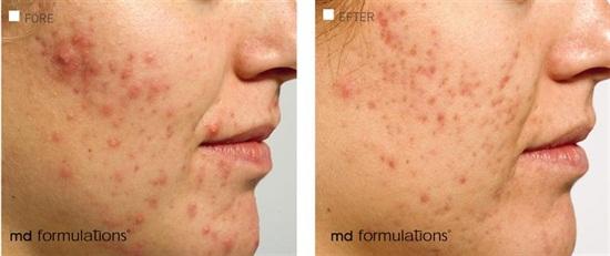före och efter med MD Formulations