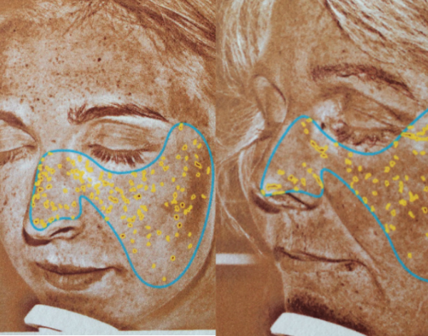 Andrea & Lena hudscanning