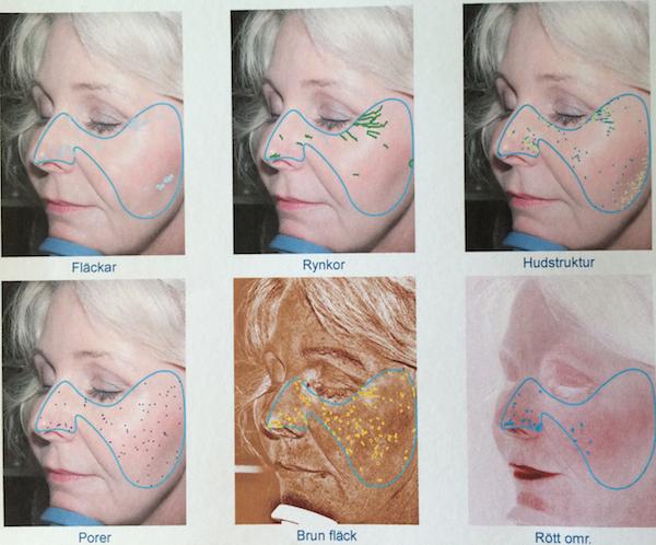 Lena hudscanning