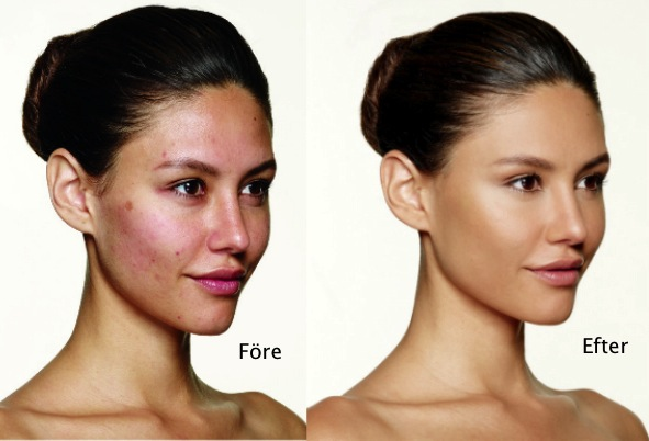 bareMinerals blemish remedy foundation before and after